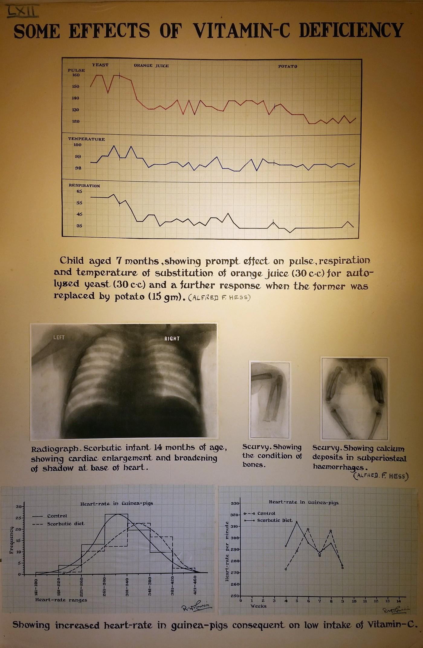 Mc Effect vitamin C deficiency on pulse
