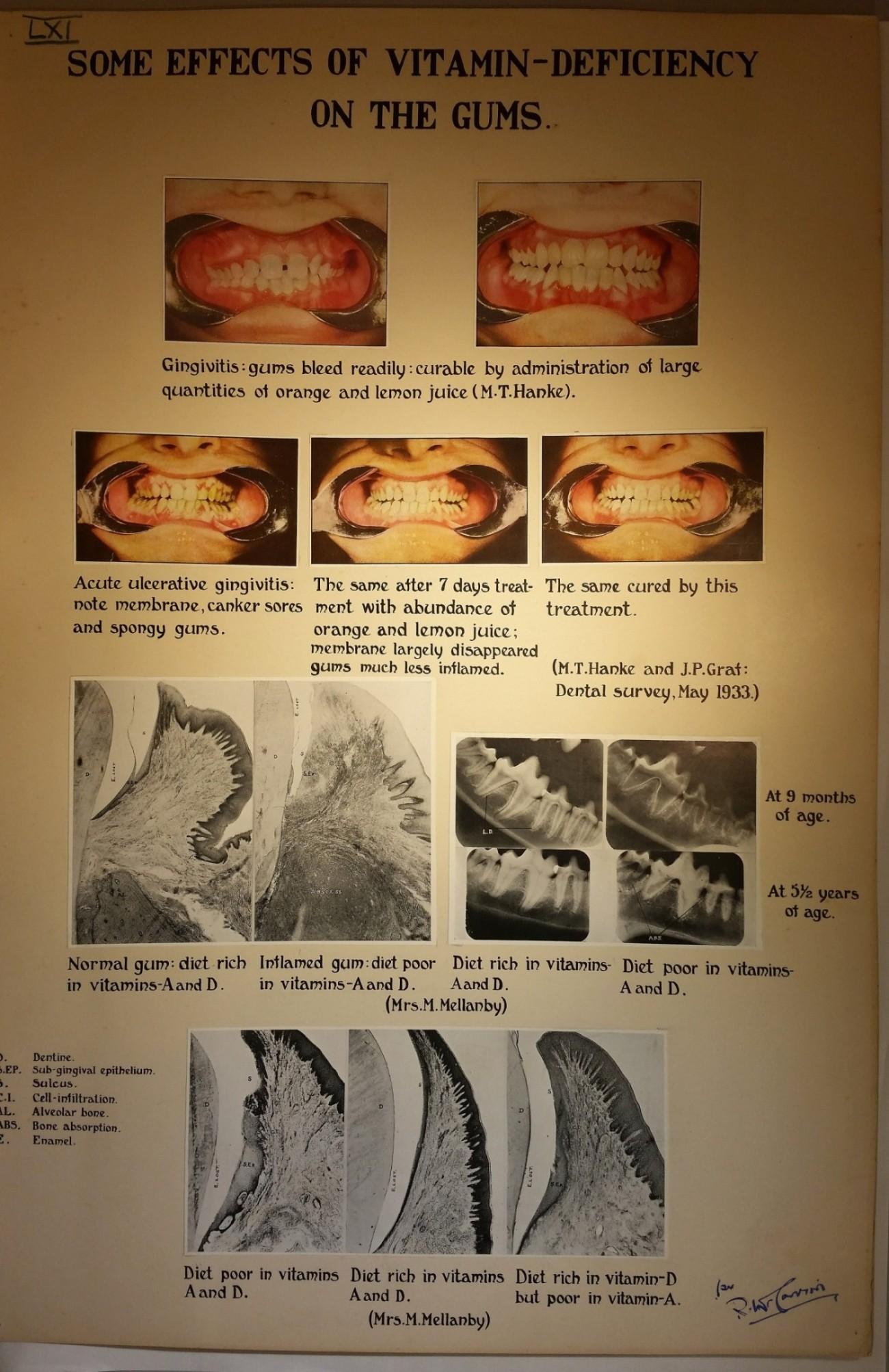 Mc Vitamin D and gums-10